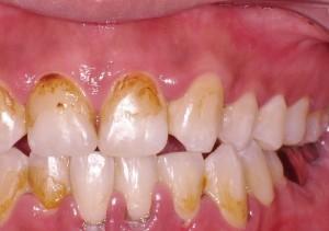 治療前Gum